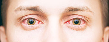 диагностика и лечение заболеваний переднего и заднего отрезка глаз воспалительного характера