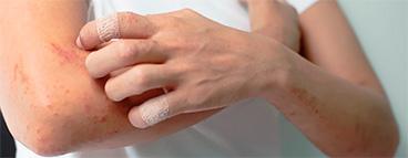 Лечение аллергодерматозов