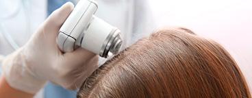 Лечение заболеваний, связанное с выпадением волос